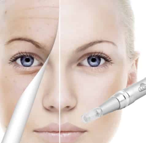 Microneedling in Hannover